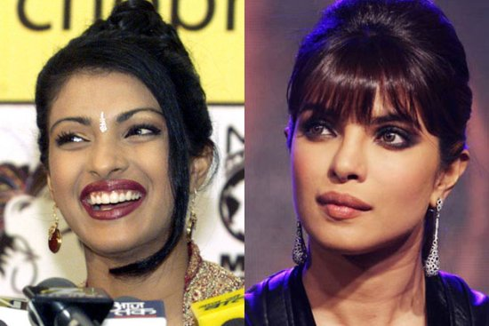 Priyanka-Chopra surgery